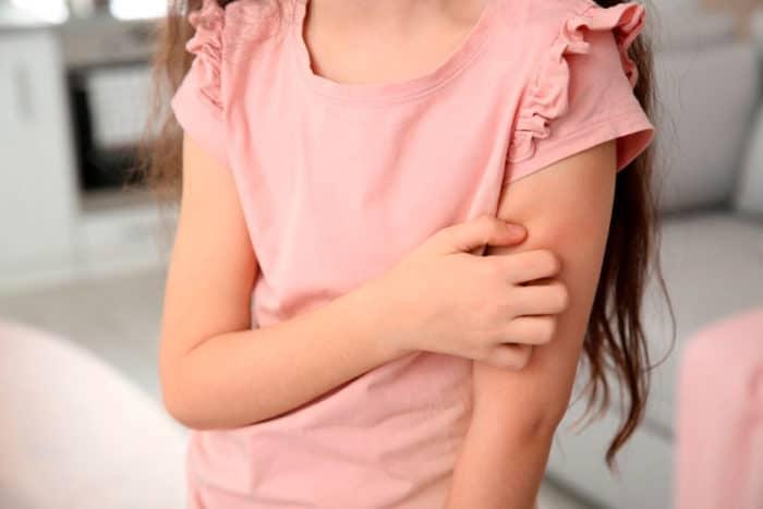 Dermatitis infantil
