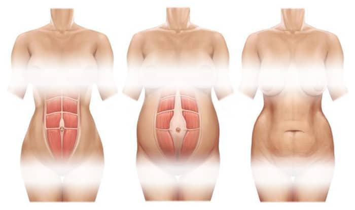 diástasis abdominal tras el parto