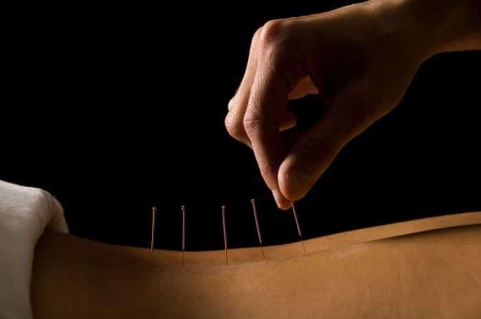 Acupuntura tratamiento infertilidad hombres mujeres