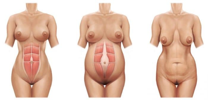 Diastasis abdominal sintomas