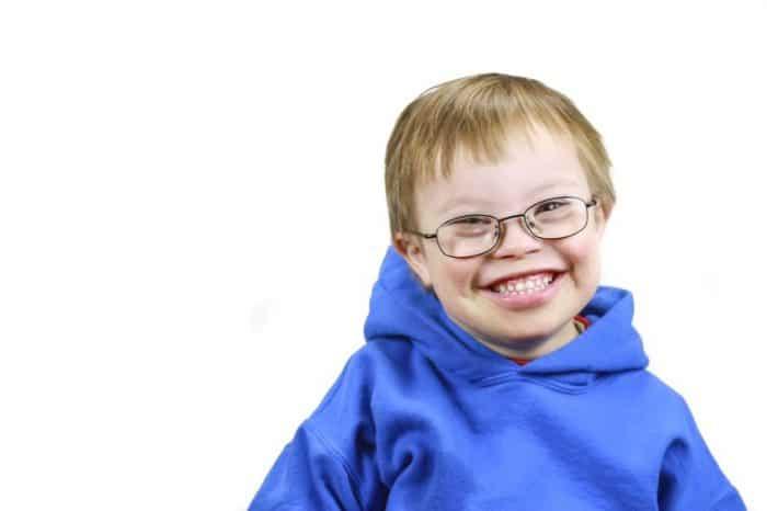 Signos y síntomas del síndrome de Down