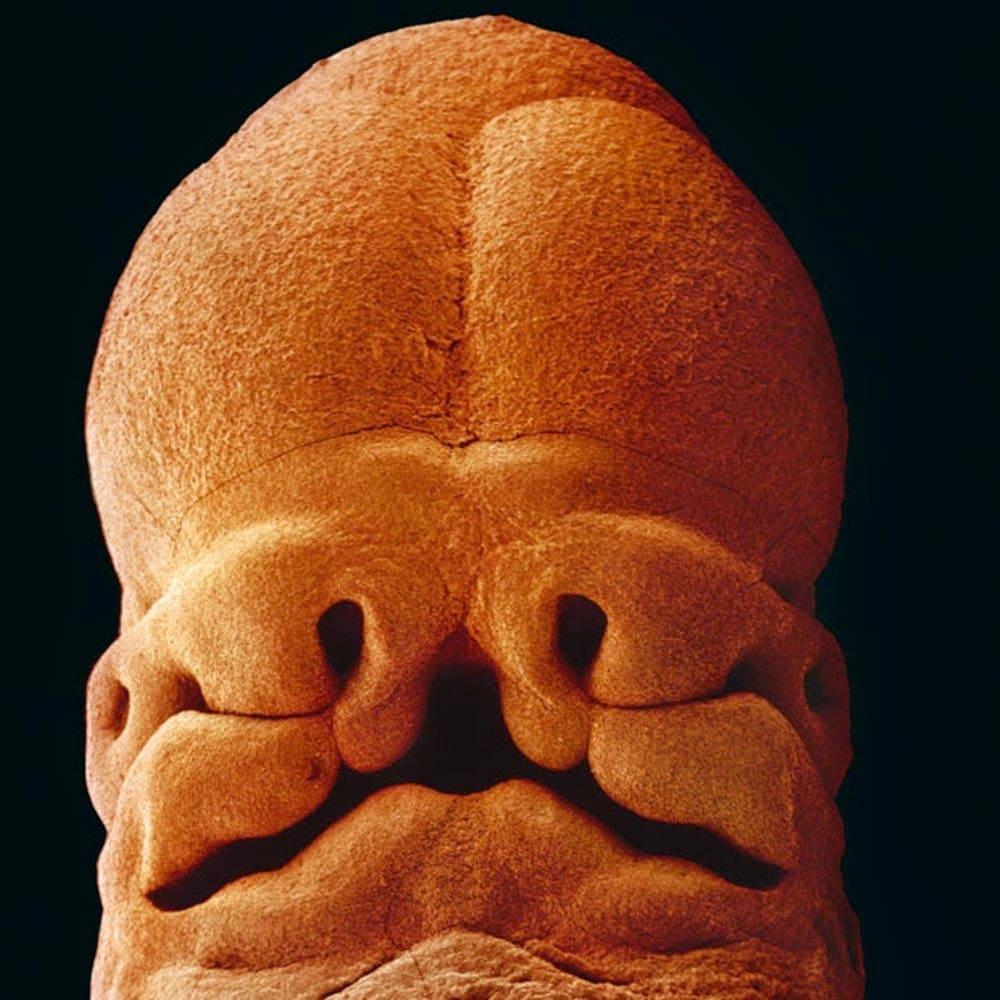 Se aprecia en el embrión dónde irán la boca y los ojos