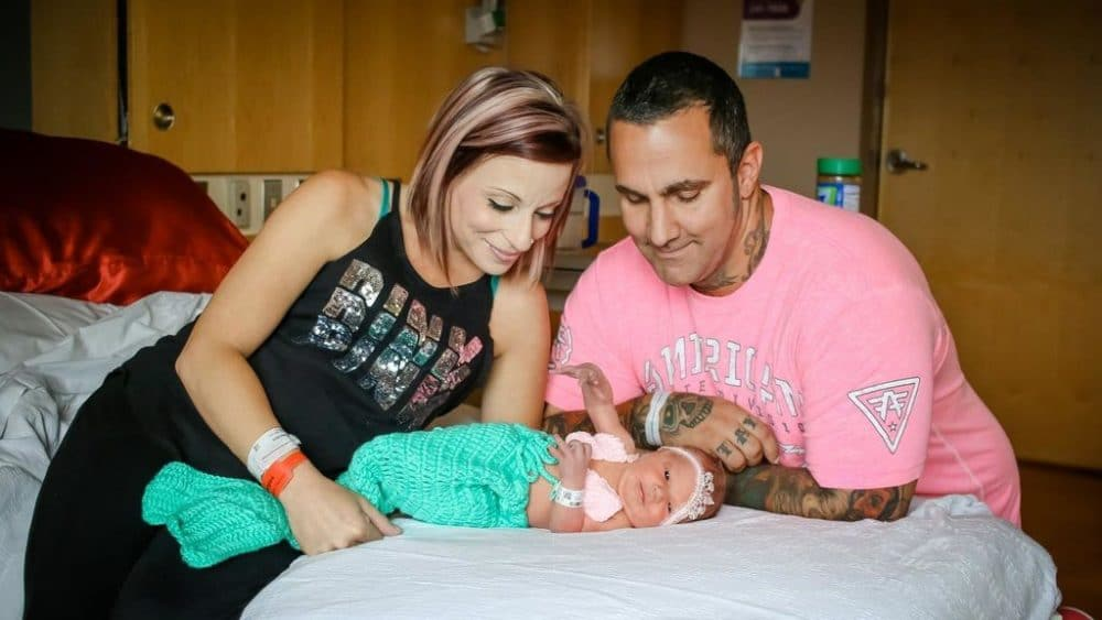 Padres Mariana bebé muertoMeningitis HSV1herpes labial