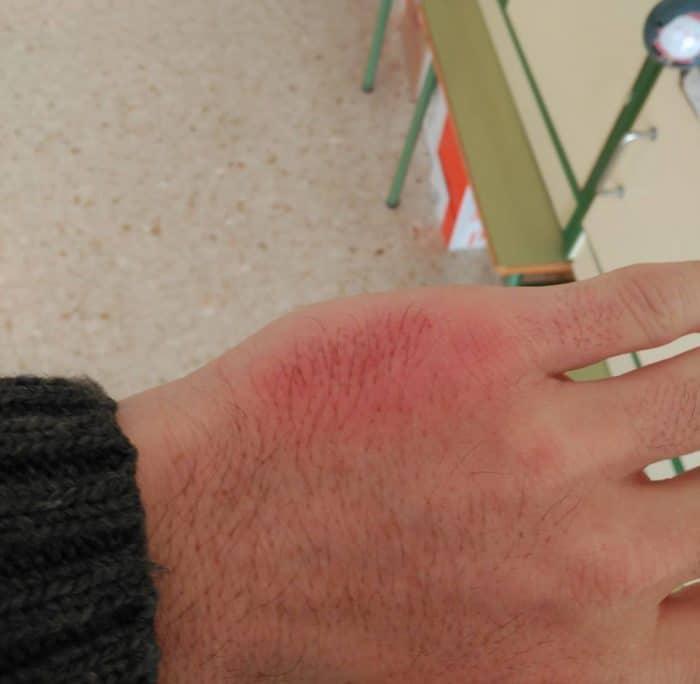 Mano lesion agresion alumno profesorFran Amroht