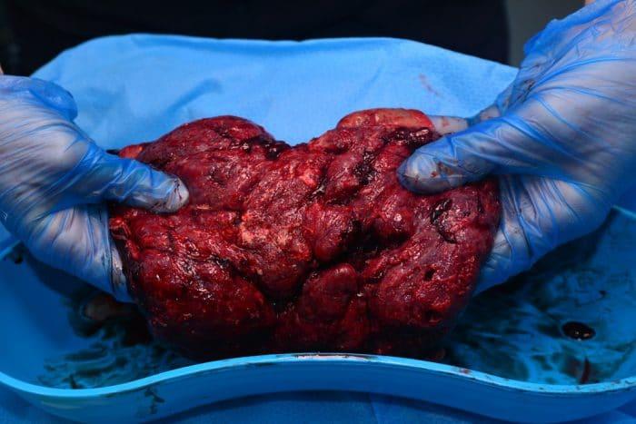 Placentofagia comerse la placenta