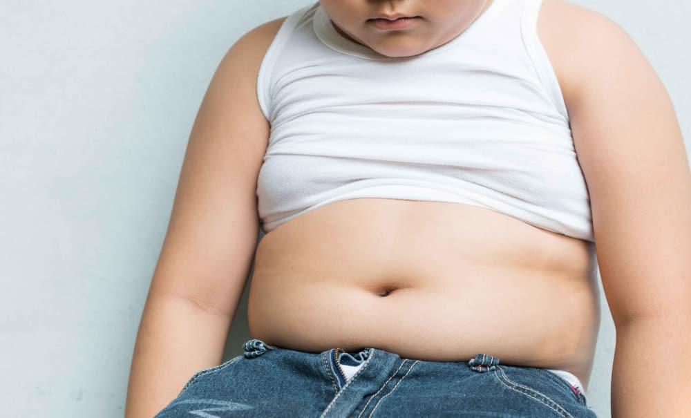 sobrepeso niños