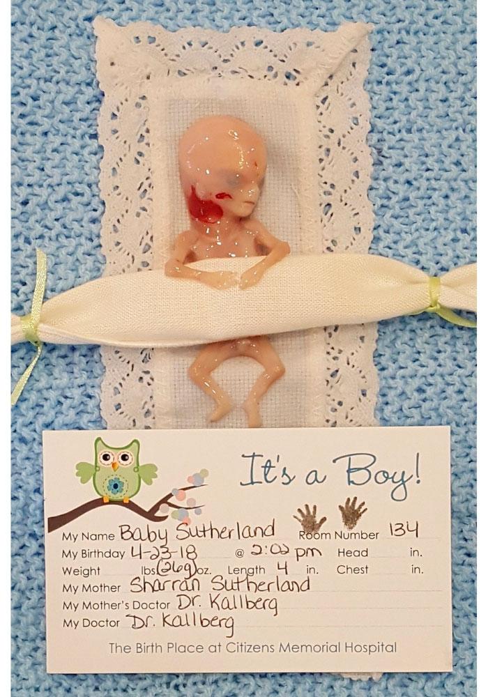 aborto bebe 14 semanas
