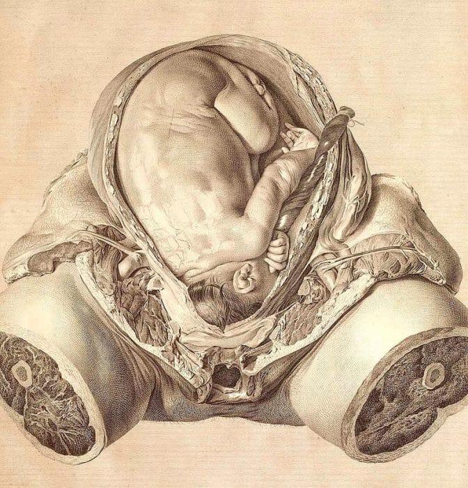 ginecologia obstetricia siglo XVIII