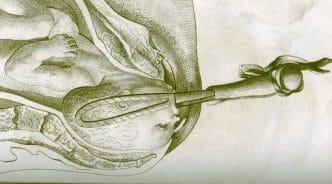 obstetricia siglo XVIII