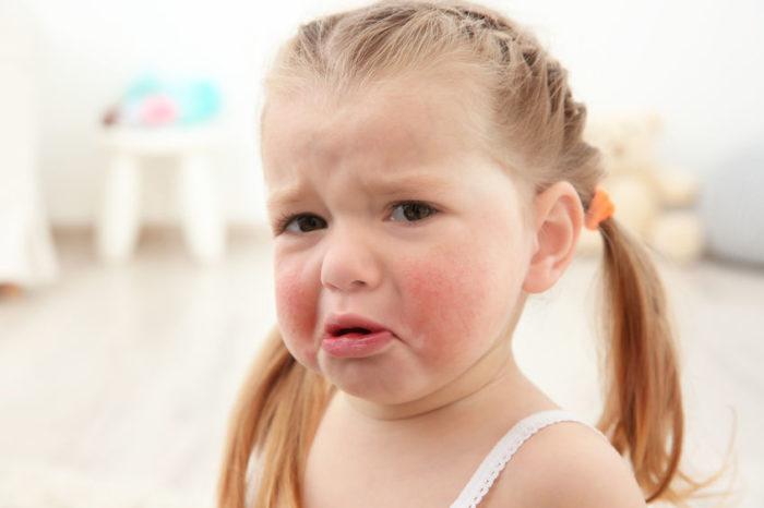síntomas alergia marisco niños