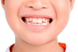 manchas decoloración dientes niños